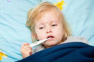 Ветрянка у детей: симптомы и лечение «Ацикловиром»