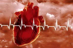 Сужение митрального клапана сердца