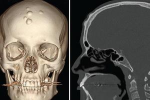 Остеома лобной кости и пазухи
