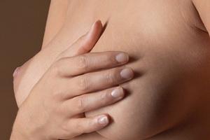 Рак молочной железы: симптомы, стадии и лечение болезни