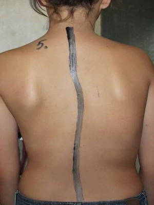 сколиоз грудного отдела позвоночника 1 степени фото