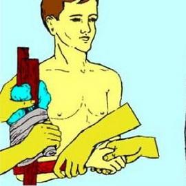 Первая помощь при переломах конечностей ребер костей таза позвоночника и др