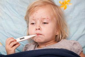 Краснуха у детей: симптомы и лечение
