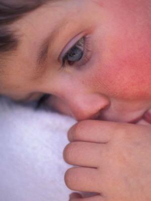Скарлатина симптомы у детей фото горла