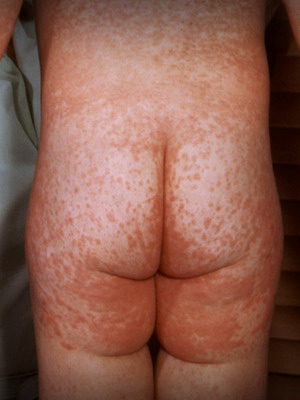 На теле красные пятна народная лечение