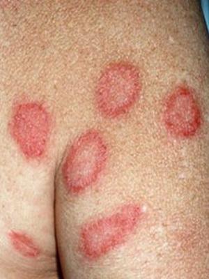 Хвороби шкіри фото і назви