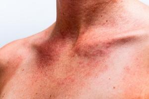Аллергия на солнце и методы её лечения