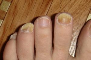 Грибковые инфекции кожи и ногтей