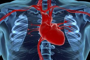 Ишемическая болезнь сердца: симптомы, лечение, профилактика