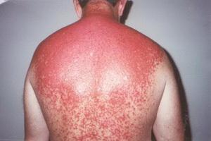 Помощь и лечение солнечных ожогов
