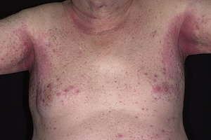 Лечение опрелостей кожи