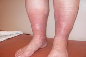 Тромбофлебит вен: симптомы и лечение