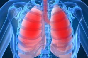 Хроническая обструктивная болезнь легких — ХОБЛ