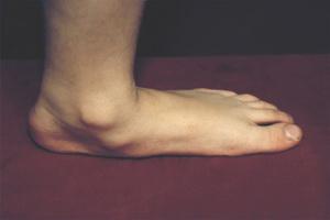 Симптомы и профилактика плоскостопия