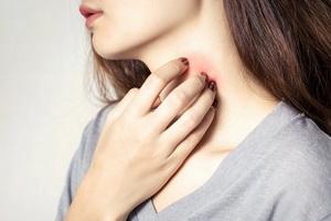 Причины и лечение заболевания фурункулез