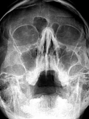 Хронические судороги причина и лечение