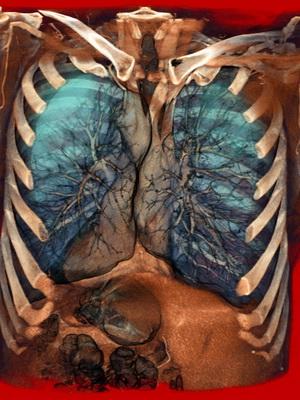 Анатомия бронхов в картинках