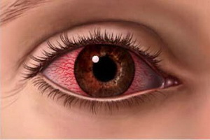 Заболевание роговицы глаза кератит