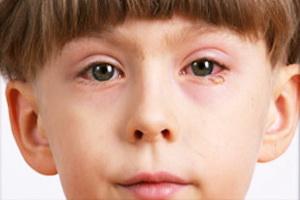Блефарит глаза у ребенка: симптомы и лечение