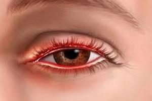 Блефарит век: симптомы, причины и лечение болезни