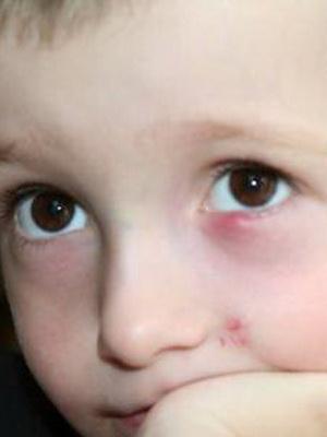 У ребенка на глазу халязион как лечить комаровский