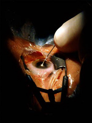 Воспаление сальной железы на веке
