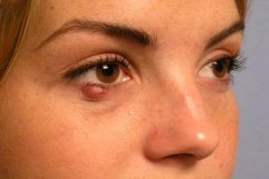 Средства лечения ячменя на глазу