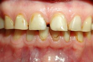 Признаки болезни зубов