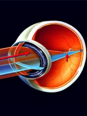 После лазерной коррекции зрения - все, что можно и