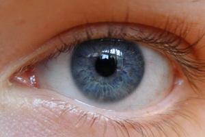 Виды астигматизма глаз