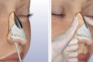 Анатомия носовой кости