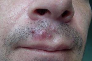 Сикоз преддверия носа: фото и лечение