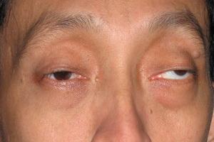 Синдром Кернса-Сейра: фото и симптомы