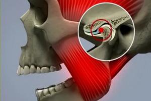 Синдром Костена, его симптомы и лечение