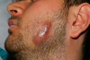 Актиномикоз человека: диагностика и лечение