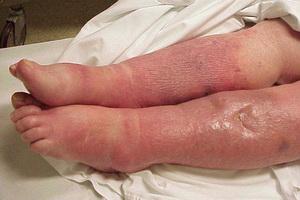 Виды сепсиса: септикопиемия и септицемия