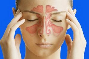 Острый и хронический гайморит: признаки и как вылечить заболевание