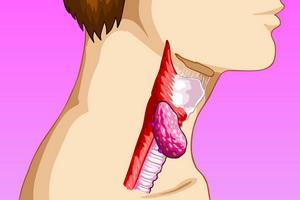 Доброкачественные опухоли гортани: фото, симптомы и лечение