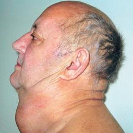 Лучевая терапия при метастазах в головном мозге — АНТИ-РАК
