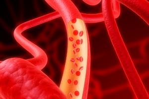 Виды анемии, причины, симптомы и лечение болезни