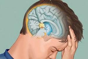 Заболевания гипофиза: симптомы, причины и лечение