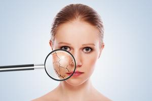 Сальные и потовые железы: функции и болезни