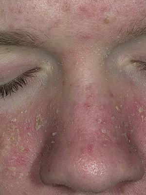 Закупорка сальной железы на лице