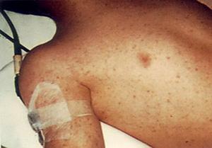 Сыпной тиф: переносчики, симптомы и лечение
