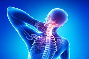 Остеохондроз: причины, симптомы, лечение, профилактика