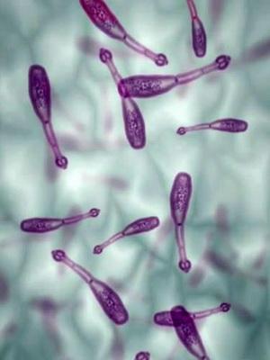 паразиты живущие в печени человека фото