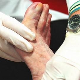 Диабетическая стопа, гангрена и трофическая язва: фото, симптомы, лечение, профилактика диабетической ангиопатии