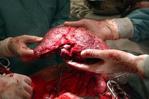 Трансплантация печени: виды и показания