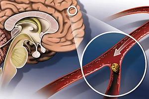Нарушение мозгового кровообращения: стадии, причины и лечение