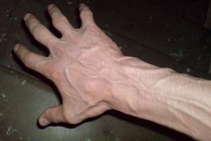 Заболевания вен и сосудов верхних конечностей и их лечение